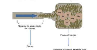 diagram-fodmap