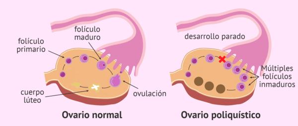 sindrome de ovario poliquistico y nutricion