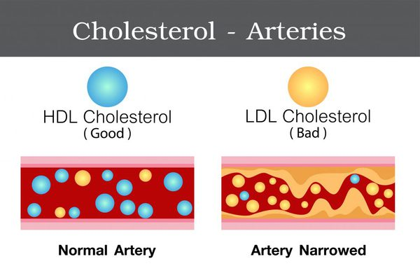 colesterol hdl o colesterol bueno vs colesterol ldl o colesterol malo